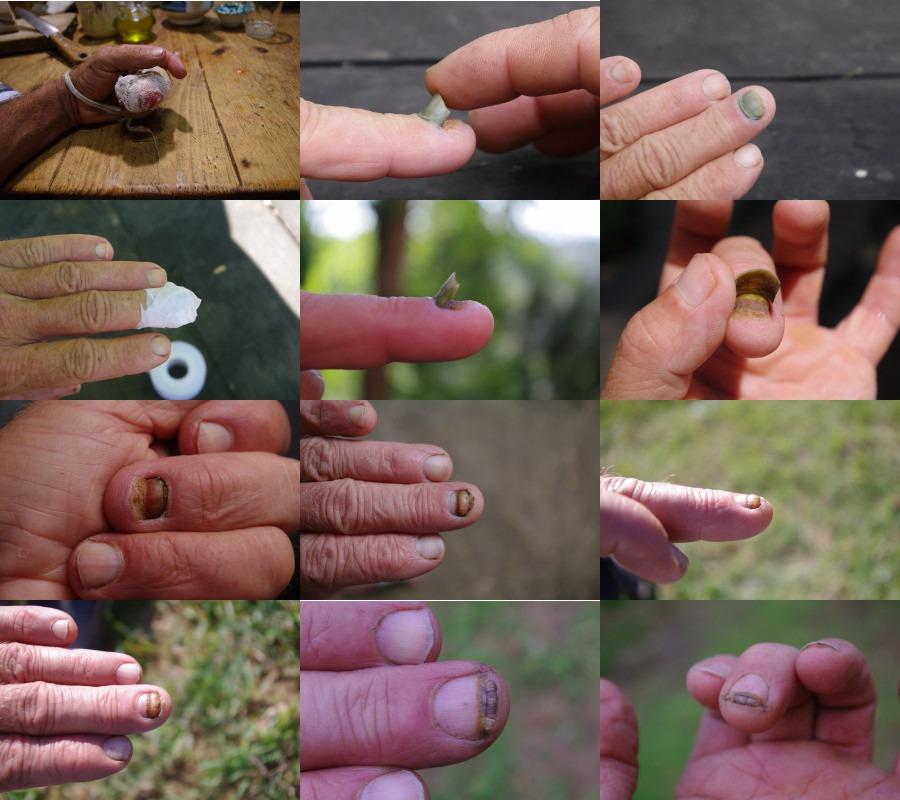 Come trattare calzini a un fungo di piede